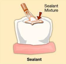 Greenwood-Dental-sealant-illustration