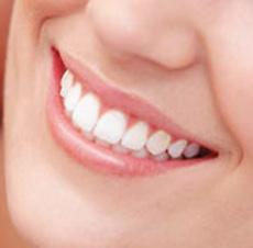 Greenwood-Dental-veneers