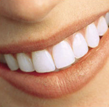 Greenwood-Dental-whitening