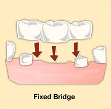 Greenwood-dental-bridge
