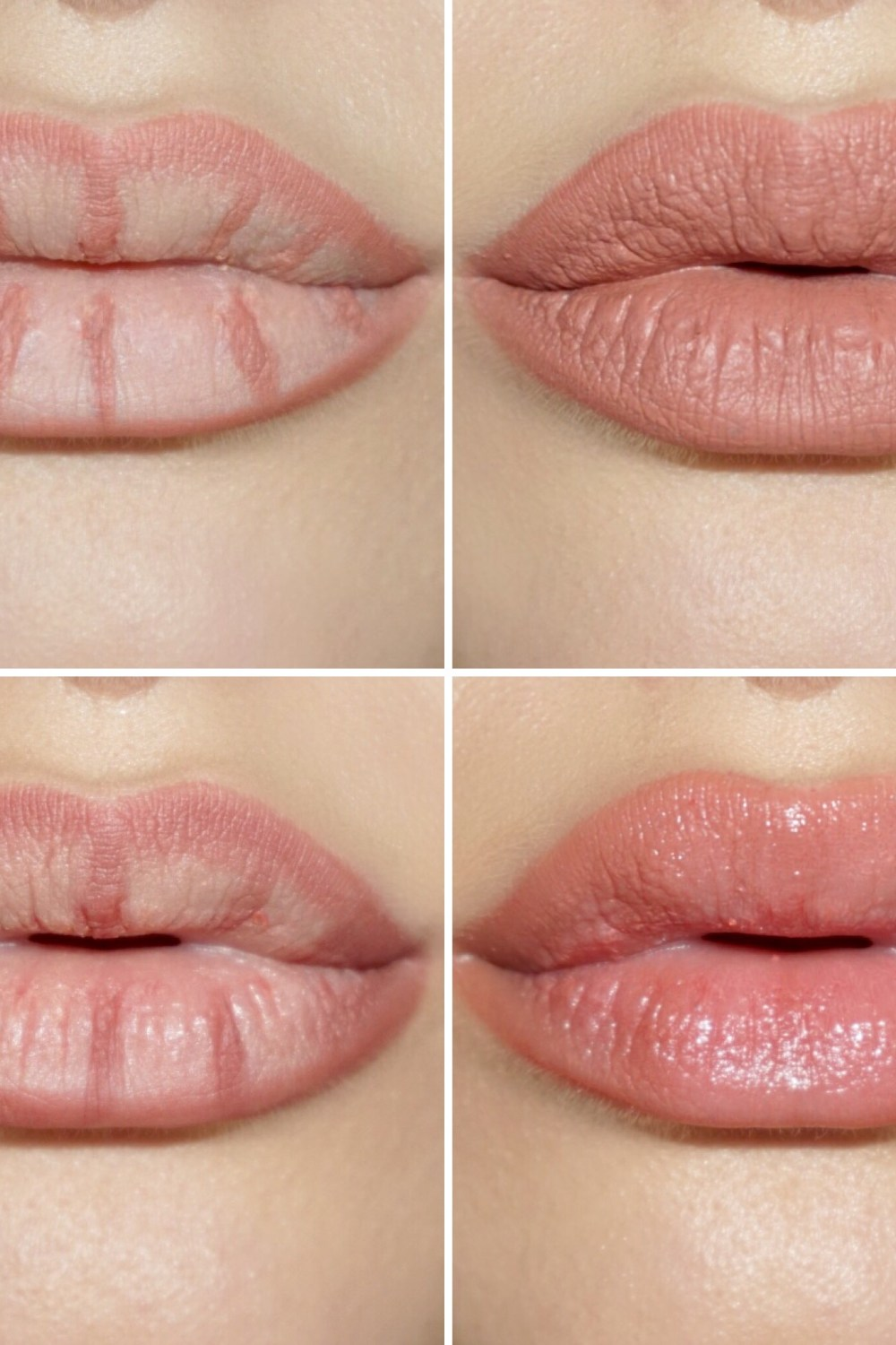 Does Lip Contouring Work?