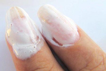 Убивает ли хлор грибок ногтей