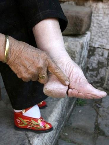 pieds-chinois