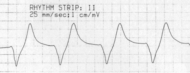 Complex QRS cu aspect sinuos, cu unda T inglobată sursa: http://i2.wp.com/lifeinthefastlane.com/wp-content/uploads/2011/02/sine-wave-hyperk.jpg
