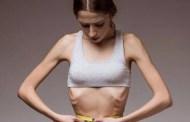 Según un estudio, la anorexia tiene origen metabólico, no solo psiquiátrico