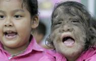 "El omeprazol causa el ""síndrome del hombre lobo"" en bebés"