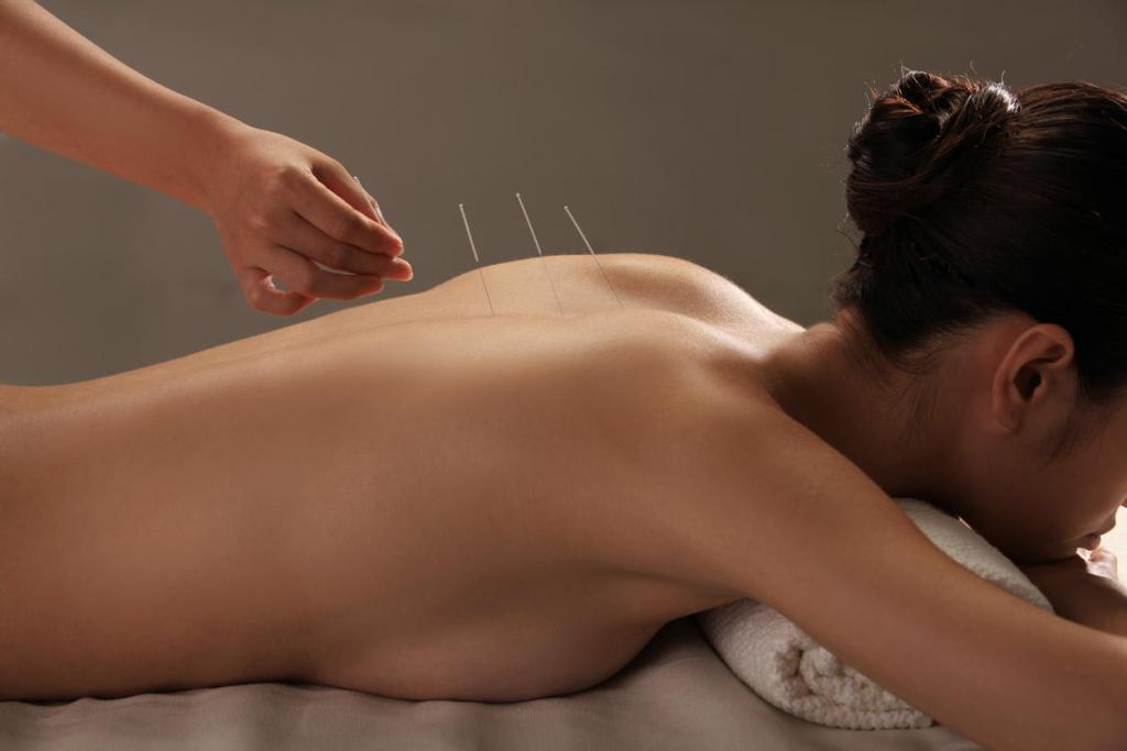 acupuncture préparation à la naissance