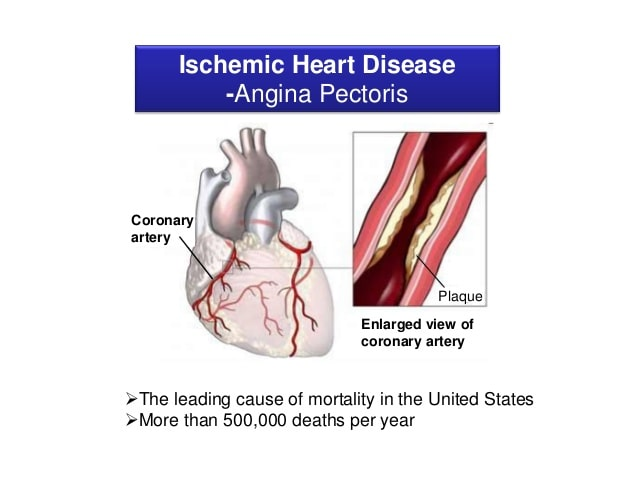 What is ischemia? Causes of myocardial ischemia and risk factors.