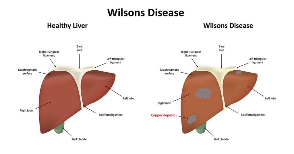 What is Wilson's disease? What are the symptoms of Wilson's disease?