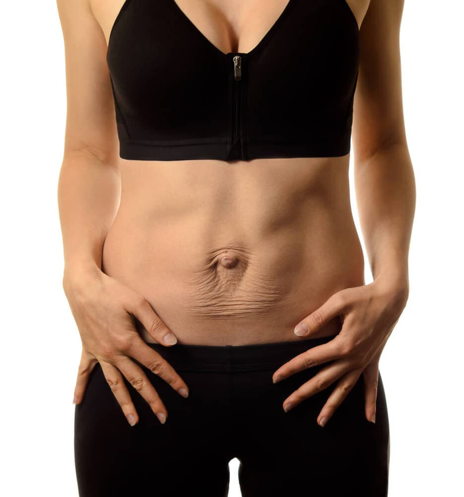 What is diastasis recti? How does it heal?