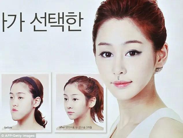 Jaw surgery in Korea, plastic surgery in Korea