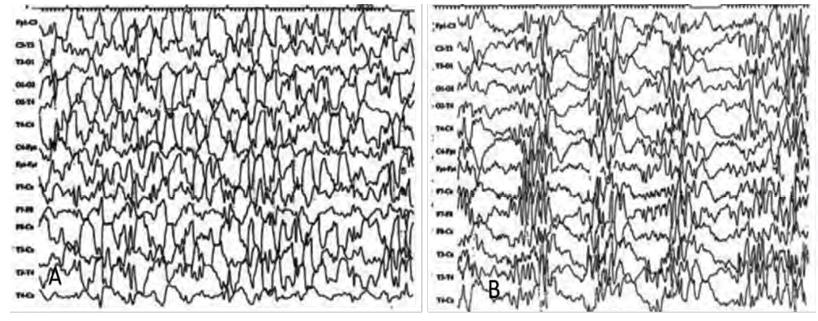 Hallazgos electroencefalográficos. a) Hipsarritmia típica b) Hipsarritmia fragmentada durante el sueño