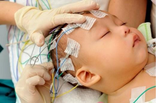 EEG en lactantes