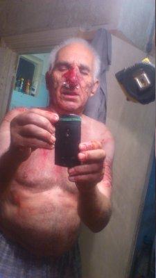 К воронежскому активисту рано утром ворвались неизвестные с битой и избили его