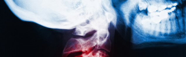 detail of neck x-ray image and red zone pain