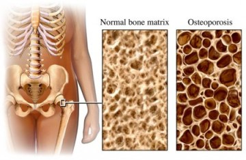 Effects of vitamin D deficiency and osteoporosis