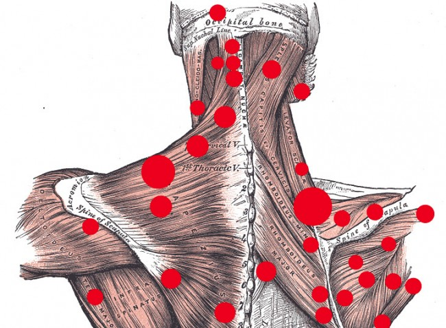massage therapy  do trigger points exist   u00b7 guardian liberty voice