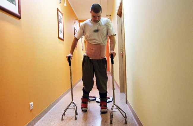 Spinal Cord Injury Patient Recovery May Give Hope to Stroke Survivors