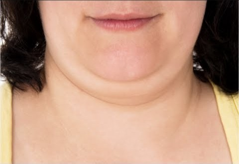 New Treatment Approved for Eliminating Double Chin