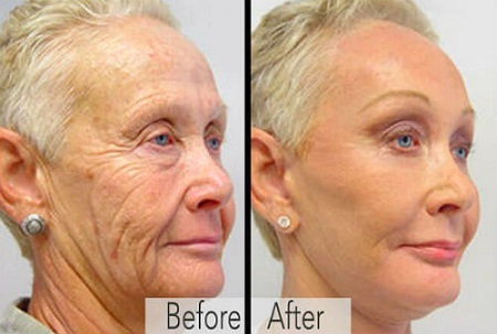 Better Than Botox Cream Removes Eye Bags in 90 Seconds?