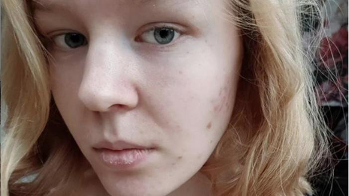 Noa Pothoven 17 Years Old Legally Euthanized in the Netherlands After Rape
