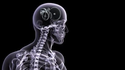 rentgen-skelet