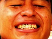 Hermelindo's golden smile