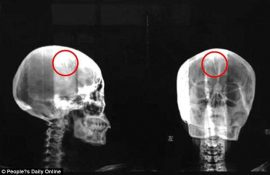 Chinese Woman Discovers Two Inch Needle Lodged Inside Her Skull For 46 Years