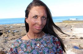 Turia Pitt: 'People say I'm lucky to have Michael but luck has nothing to do with it'