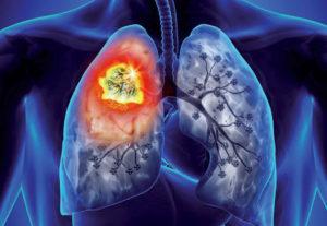 Témoignage : combinaison d'un traitement métabolique et d'une immunothérapie