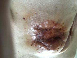 Témoignage d'une patiente canadienne atteinte d'un cancer du sein récidivant et inopérable