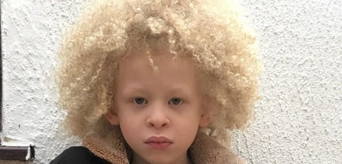 Petogodišnjak s albinizmom postao model za dječju odjeću