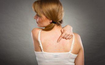 alergias-presenca-inconveniente