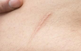 os-tipos-de-cicatrizes