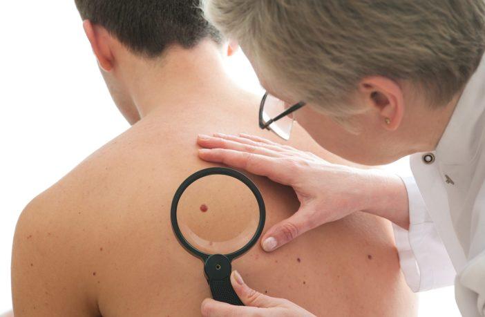 indra-desenvolve-ferramenta-para-detectar-o-cancer-de-pele-em-farmacias