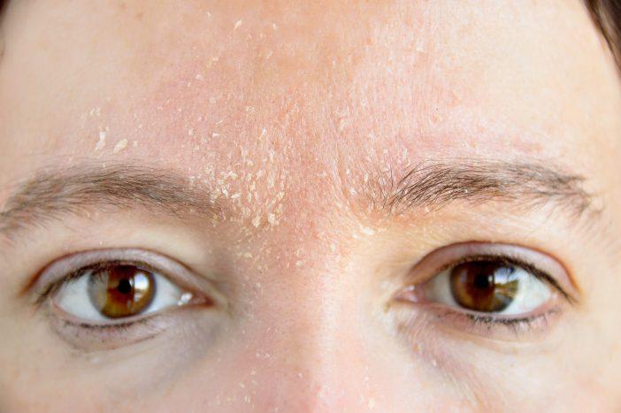 tratamento dermatite seborréica