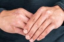 consulta-publica-avalia-inclusao-de-novo-tratamento-para-psoríase-no-sus