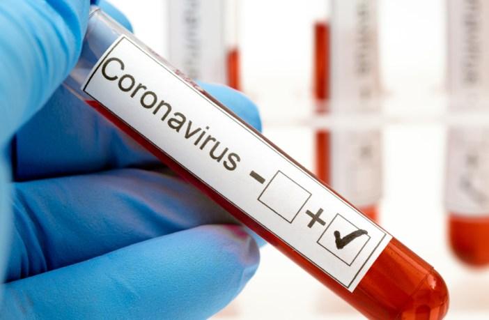 esclareca-as-duvidas-sobre-os-testes-de-coronavírus