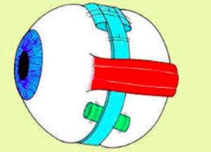 Distacco di retina 1