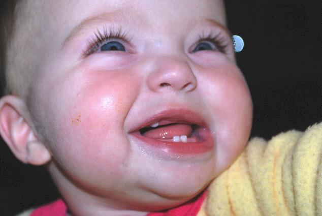 See my teeth?