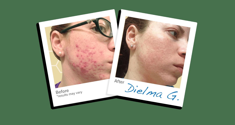 Dielma acne Trial
