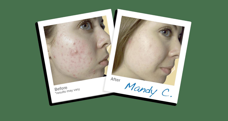 LEROSETT® Botanical Acne Cleanser Face Wash