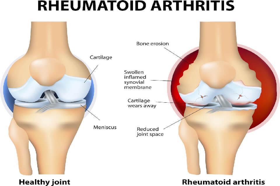articulația bolii de genunchi se crispa sever