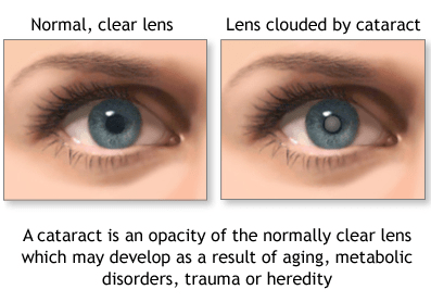 example of cataracts in the eye