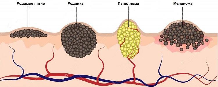 HPV 16 naisten hoidossa