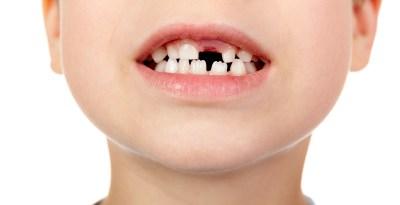 歯の抜けた子供