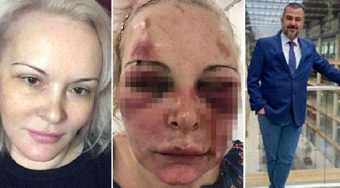 Rus kadın oteldeki dehşet dolu anları anlattı
