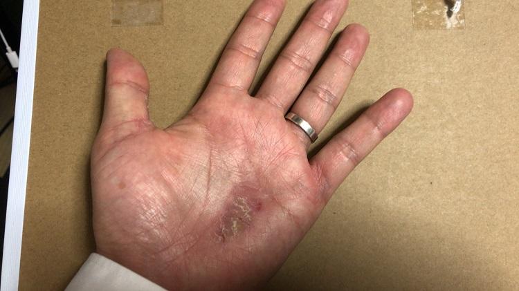 銀歯による掌蹠膿疱症
