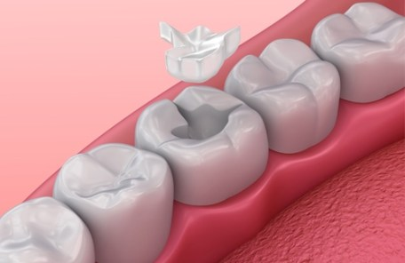 銀歯詰め物