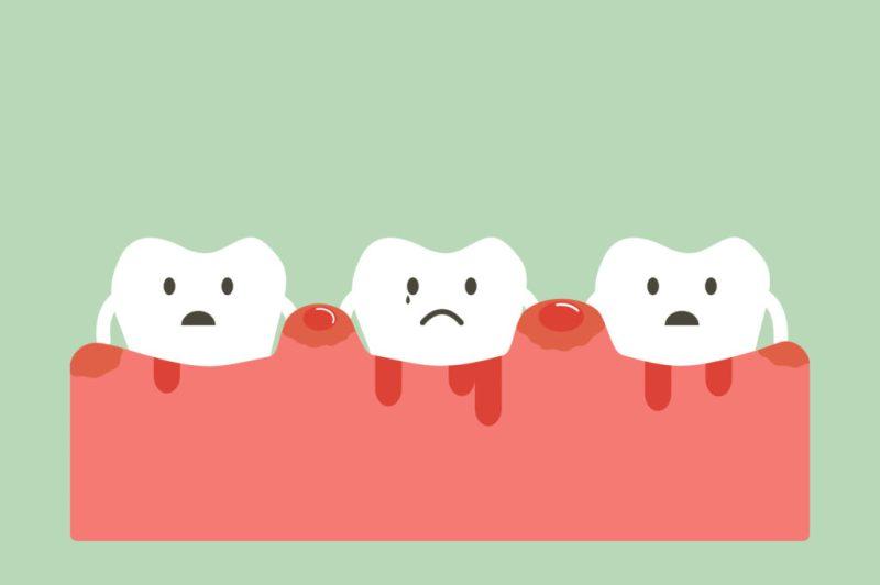 根尖性歯周炎